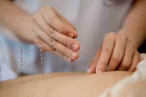Acupuncture-en-pratique-Guide-acupuncture 01 600x400