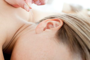 Acupuncture-en-pratique-Guide-acupuncture 02 600x400