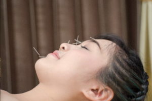 Acupuncture-en-pratique-Guide-acupuncture 04 600x400